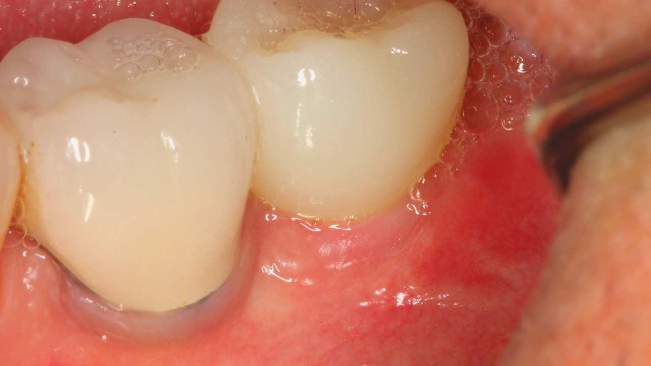 couronne sur implant titane.jpg