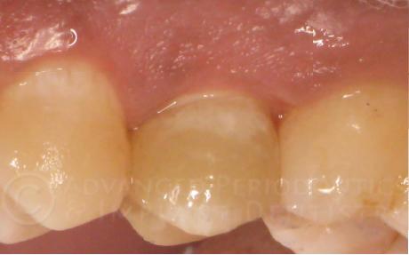implant zircone apres.jpg